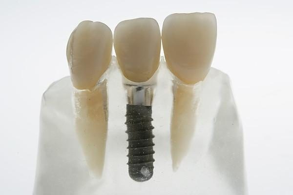Wie verläuft das moderne Ersetzen der Zähne, das Einsetzen eines Implantates?